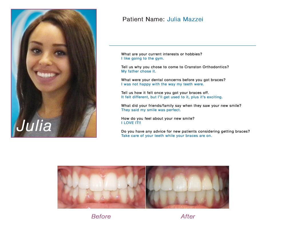 Patient Profiles - Orthodontist Cranston RI | Cranston